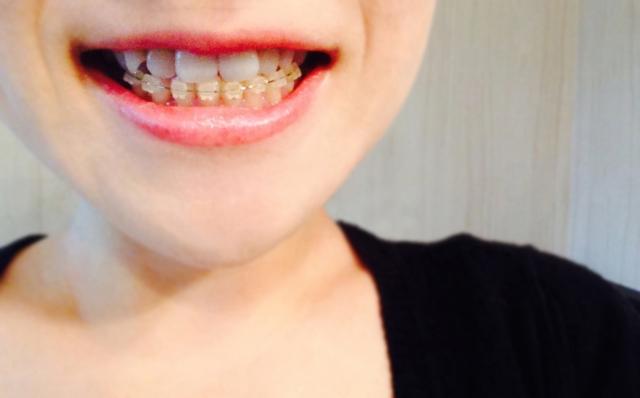 部分矯正のメリットとデメリット。短期間で歯を治せるってほんと?