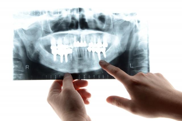 【歯科用レントゲンの種類】デンタル・パノラマ・パントモ・デジタルとは?